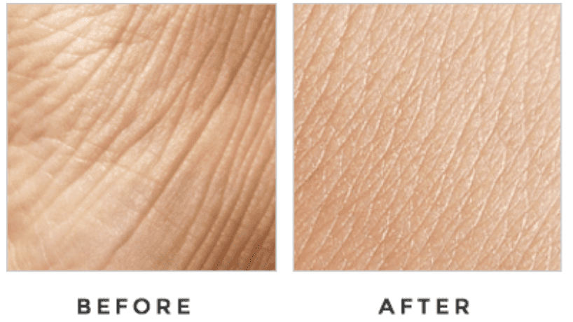 Dermacort Skin Cream Before And After