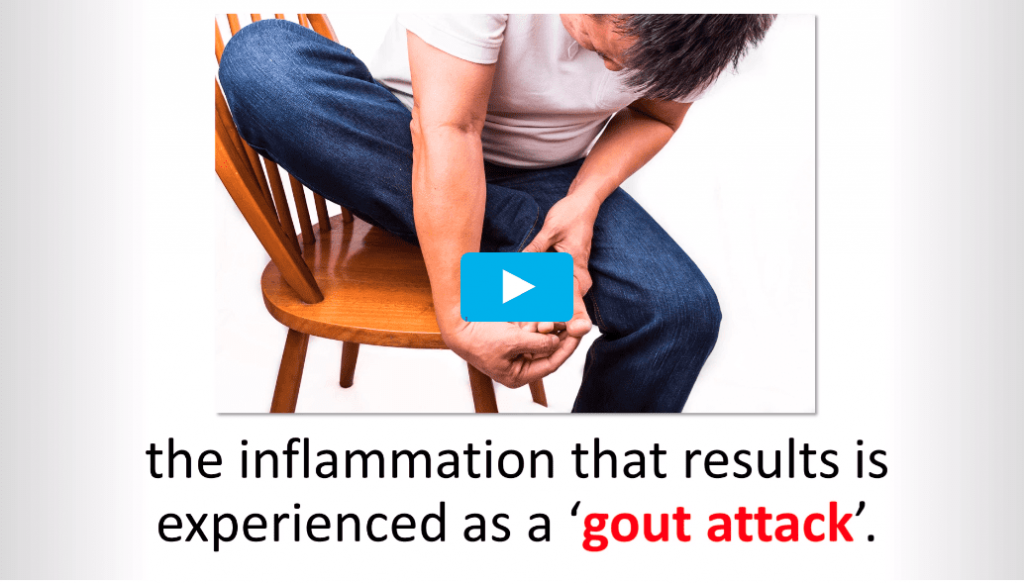 End Of Gout Review – Practical Solution To Reduce Your Gout Pain!!!